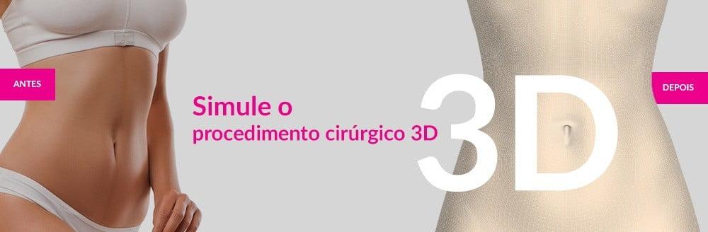 simule o seu procedimento cirurgico em 3D