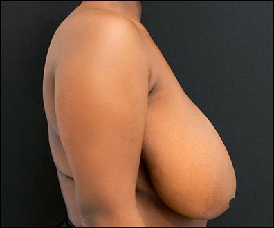 antes lateral mamoplastia de redução