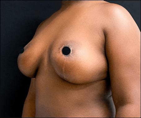 depois mamoplastia de redução