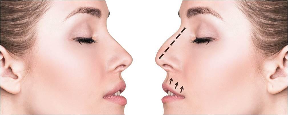 rinoplastia cirurgia ao nariz