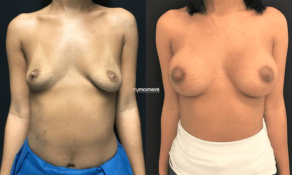 mamoplastia de aumento, caso clinico mymoment