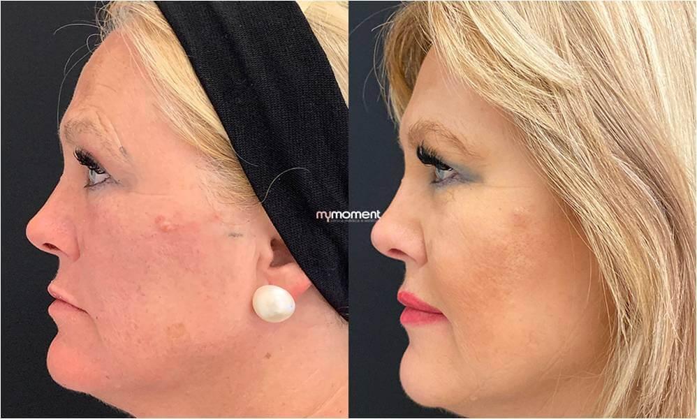 antes e depois medicina estética