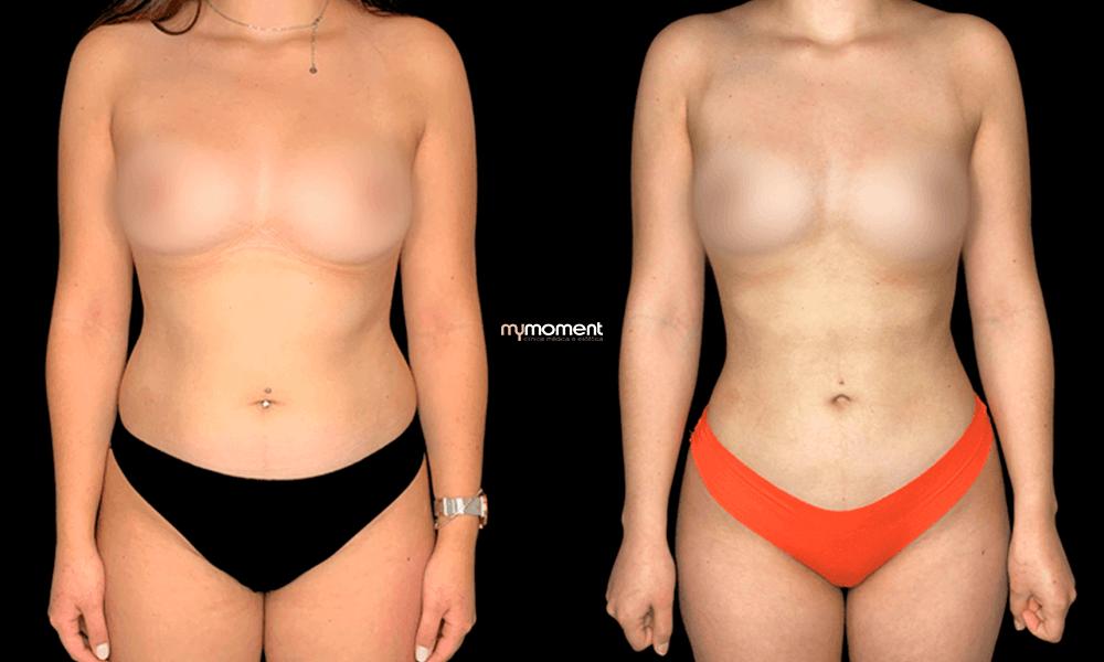 lipoaspiração caso antes e depois ana rita