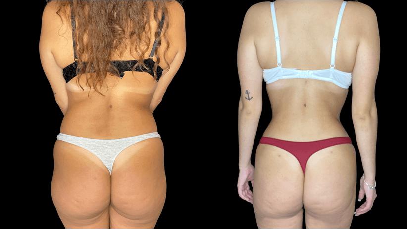 caso antes e depois de costas