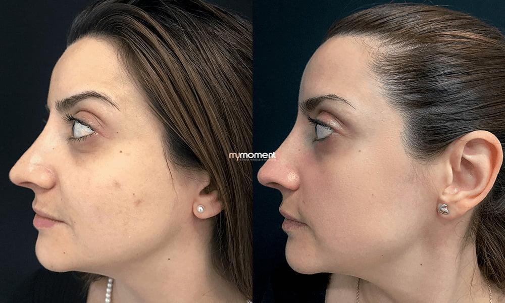 resurfacing, tratamento de cicatrizes devido ao acne