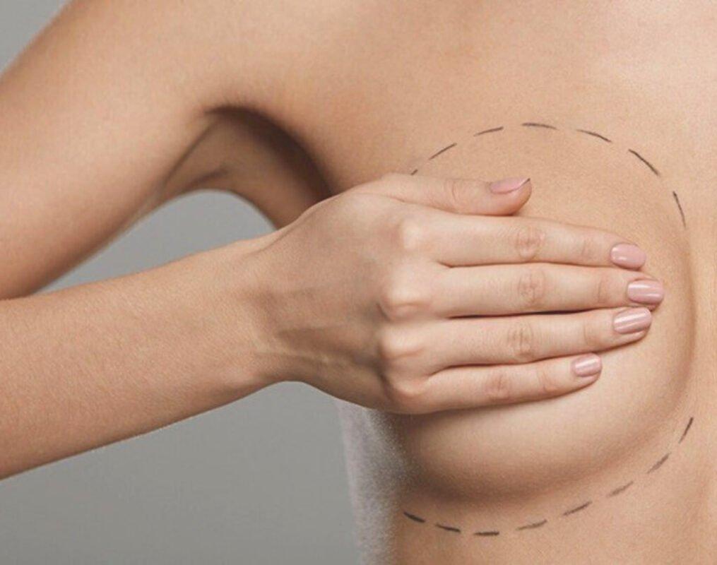 mamoplastia de aumento preço baixo